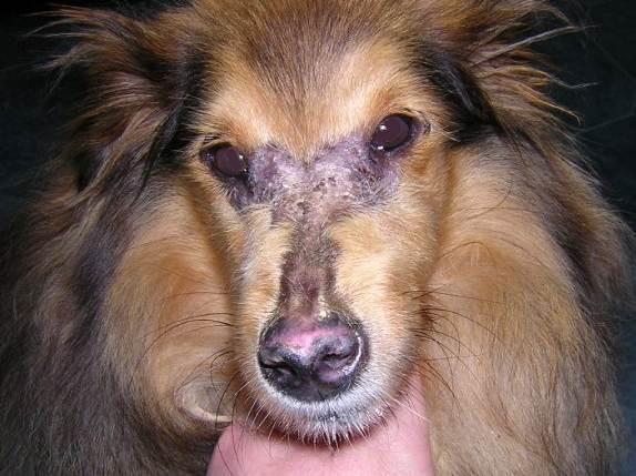 Cisr Dermatomyositis